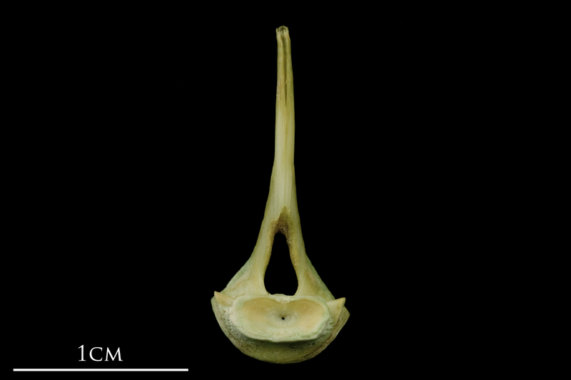 John dory first vertebra posterior view