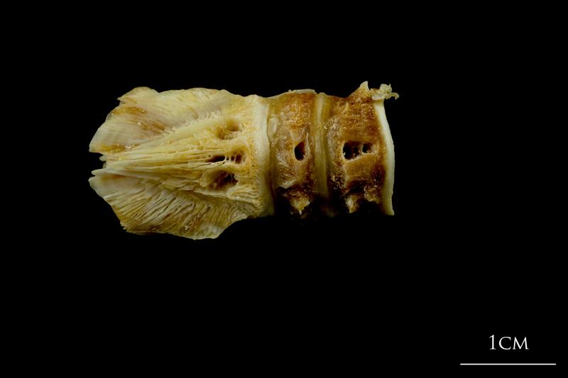 Northern pike basioccipital - first vertebra dorsal view