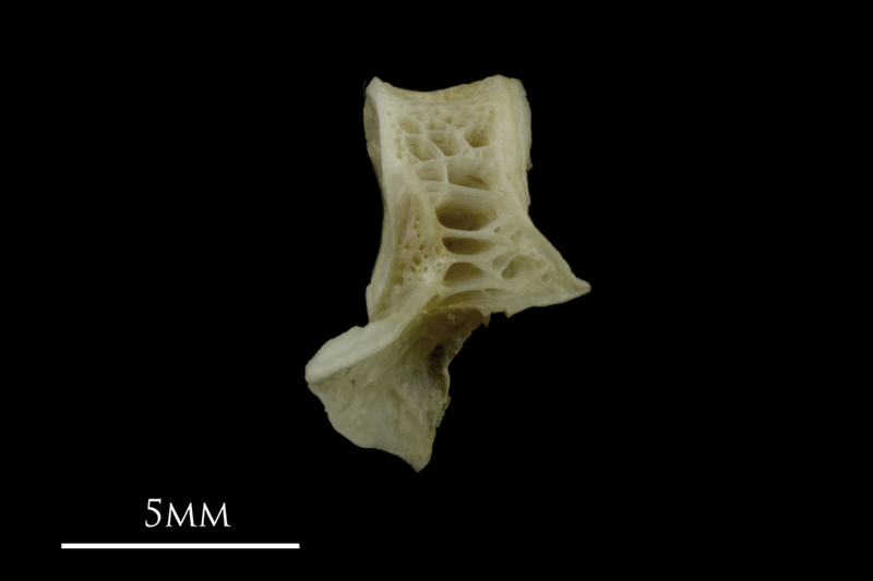 Zander first vertebra lateral view