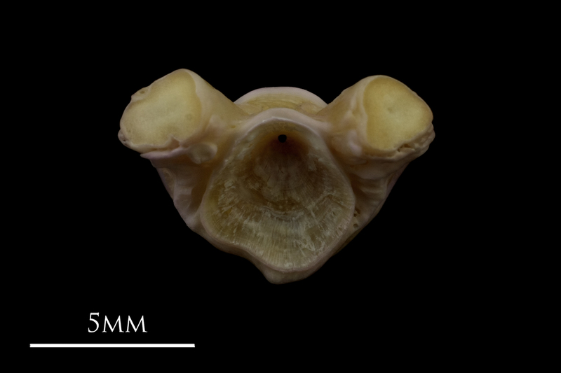 Tub gurnard first vertebra anterior view