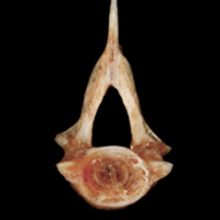 Sea scorpion precaudal vertebra anterior view