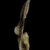Brill first vertebra lateral view