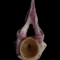 Meagre precaudal vertebra anterior view