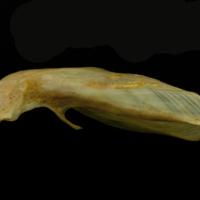 Thinlip grey mullet  cleithrum dorsal view