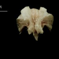 Atlantic halibut basioccipital anterior view